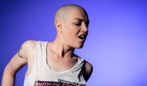 håravfall kvinna